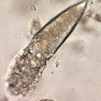 Conheça os parasitas que vivem na sua cara (c...
