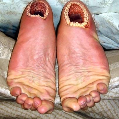 Você sente medo destes pés? Descubra o porqu...